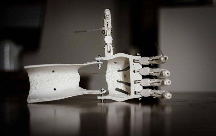 机器人和3D打印:正迎来第四次工业革命 假肢